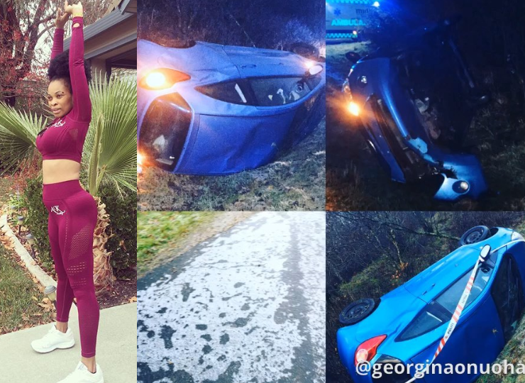 Georgina Onuoha marks 2 years anniversary of surviving the accident that nearly ended her life