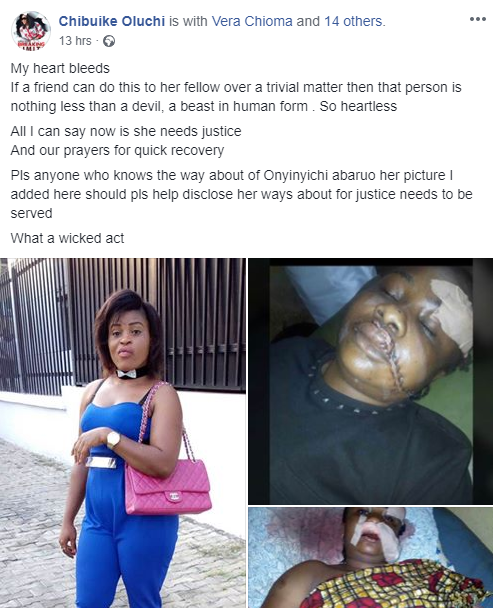 Lady disfigures her friend after dispute over N950