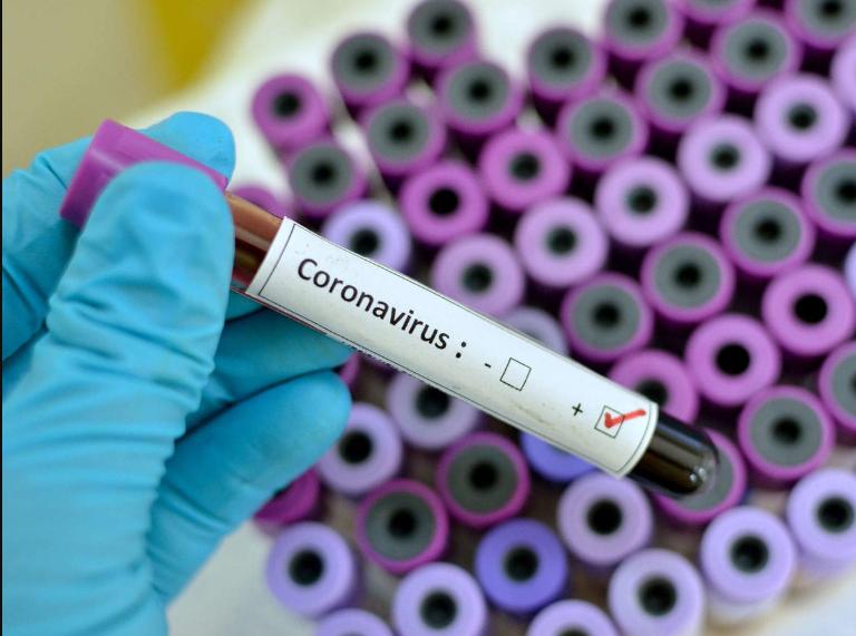 Confirmed Coronavirus cases hit 5 million worldwide