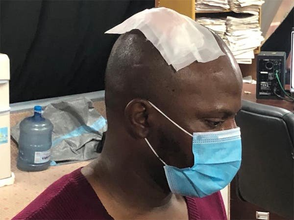 Police Break The Head Of Arise TV Cameraman, Hours After The End Of SARS (Video)