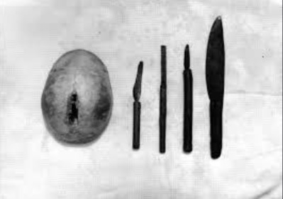 OMOBARI OMOTWE: African Traditional Healer Performing Head Surgery Long Before Arrival Of The Europeans