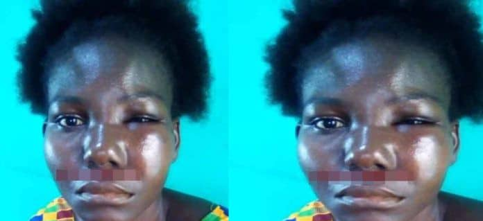Lady  mercilessly beaten by brother-in-law over a sachet water